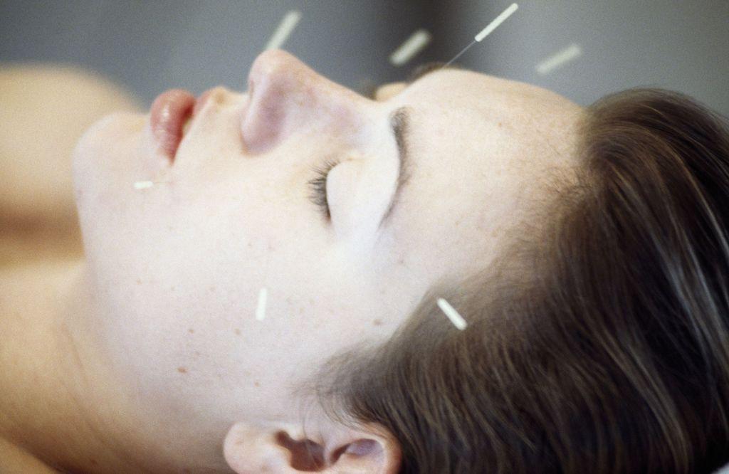 Agopuntura Scopri I Benefici Cosa Cura E Se Fa Male Lifegate