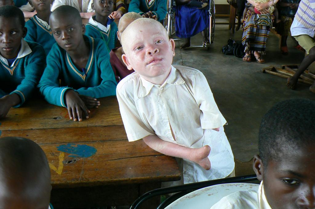 Bambino albino mutilato in Malawi
