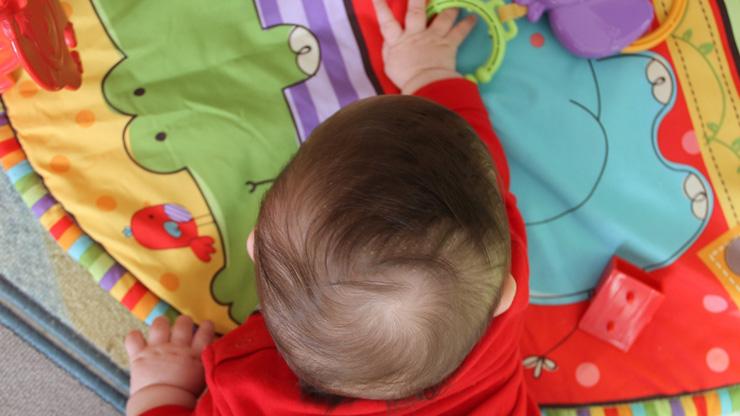 Eczema su una mano il bambino