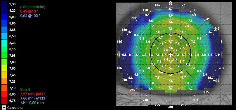 mappa corneale